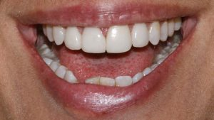 Cosmetic Dentistry Crowns