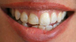Cosmetic Dentistry Crowns (Pre-op)