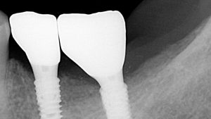 dental-implants-space-after-on-radiograph